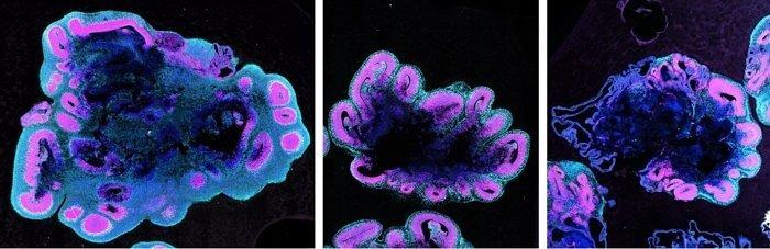 (S.Benito-Kwiecinski/MRC LMB/Cell)